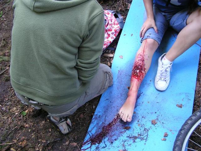 a jak se ošetří toto zranění